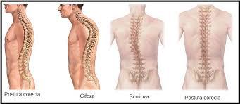 școala bolilor articulare și ale coloanei vertebrale medicamente pentru sportivi pentru articulații